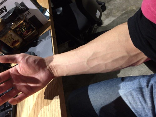 forearm-right